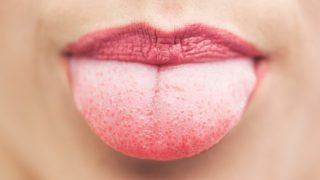 White Tongue: Causes & Treatments